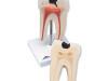 Dolny ząb trzonowy