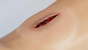 Zestaw wypadkowych ran pediatrycznych dla symulatorów pacjenta. firmy Gaumard