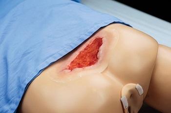 Zestaw ran odleżynowych dla symulatorów pacjenta firmy Gaumard